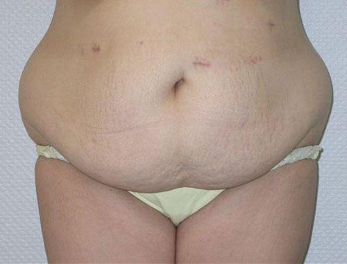 Ohne 40 fettschürze abnehmen kg Abnehmen ohne